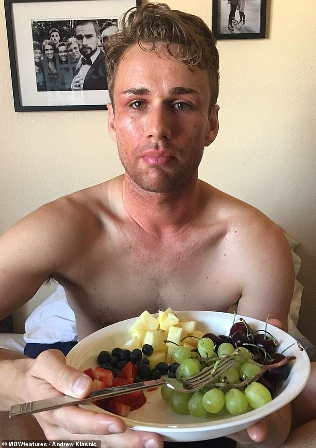Hard: Andrew said when he suffered with the skin conditions, he would regularly have to pull out of auditions because his face was sore and swollen, and it burned to put makeup on
