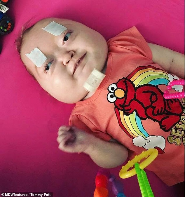 Charlotte needed a tracheotomy soon after she was born so she could breathe, and is pictured with tape on her eyes because she used to be unable to open them