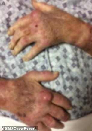The man - who has not been named - also had large swellings on his hands (pictured)