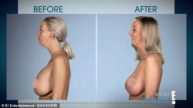 Mother with DD breasts that looked like 'upside down zucchinis' has her implants removed by Botched doctorsDr Paul Nassif and Dr Terry Dubrow
