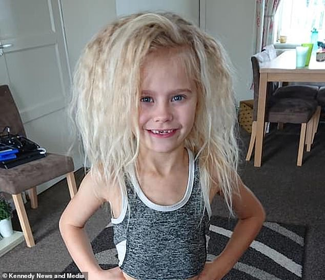 Seven-year-old Wynter Seymour, from Northallerton, North Yorkshire, has uncombable hair syndrome, which is thought to affect just 100 people worldwide