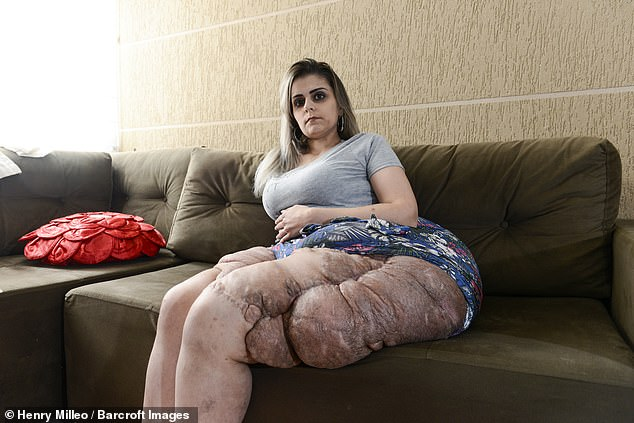 Karina Rodini, 28, from Sao Paolo, Brazil, was diagnosed with rare disease neurofibromatosis type one which has given her tumours weighing 40kg (88.8lbs) on her legs