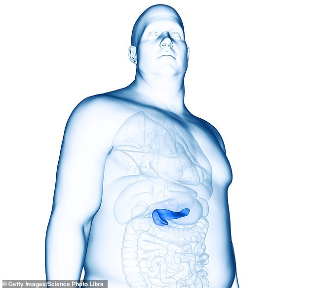 New research suggests that panreatic cancer is 25 percent more deadly in people who gain excesss weight before age 50 - and the earlier people put on pounds, the worse their odds