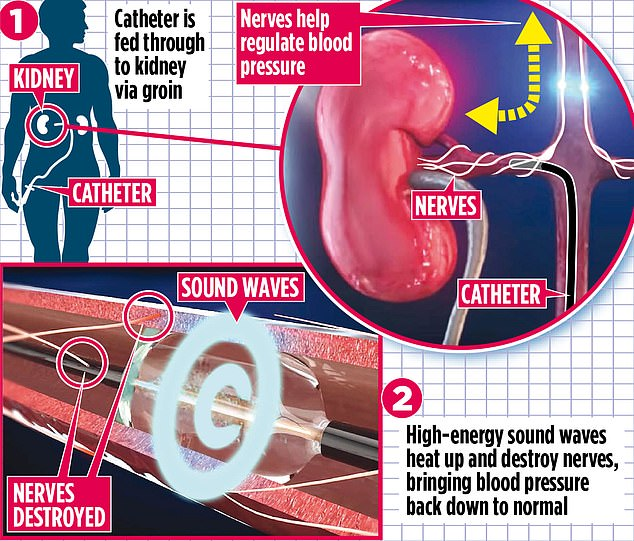 The procedure is carried out under local anaesthetic, with a long, thin tube, called a catheter, inserted into an artery in the groin. Pictured is a graphic showing how the process works
