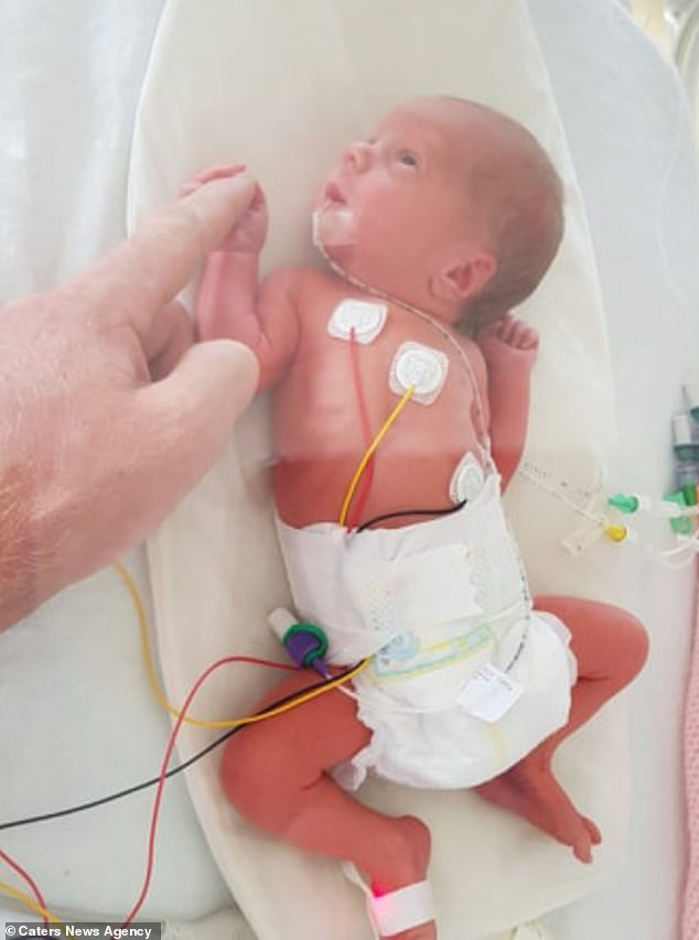 The twins were born five weeks premature in July 2018 but had to spend four weeks in the neonatal intensive care unit of Newcross Hospital in Wolverhampton. Pictured, Felicity in ICU