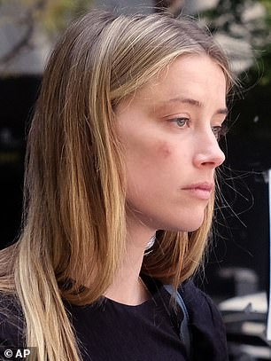 Heard was spotted leaving a California court in 2016 with facial bruising (above) after she was granted a temporary restraining order against Depp just days after claiming he attacked her