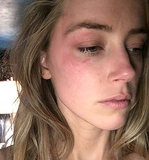 After Heard filed for divorce images emerged at the time (above) showing her with a bruised eye and face