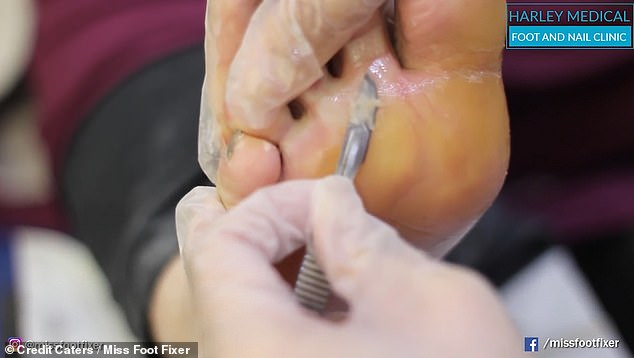 The video shows Miss Foot Fixer scraping away at the top layer of hard skin with a scalpel