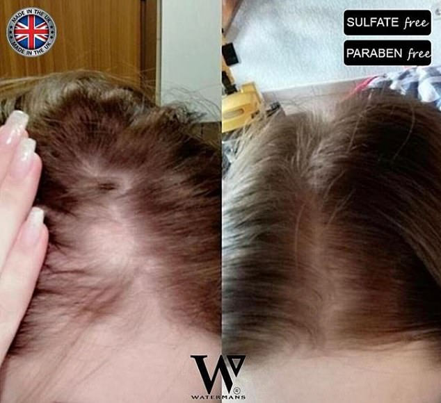 Happy customer! A woman shows how using the shampoo, which contains biotin and caffeine, helped to thicken her receding hair