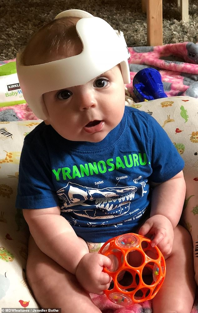 Ethan wears a helmet because he had extreme torticollis, meaning the muscles on one side of his neck were extremely tight, which lead to plagiocephaly, an asymmetrical distortion of the skull