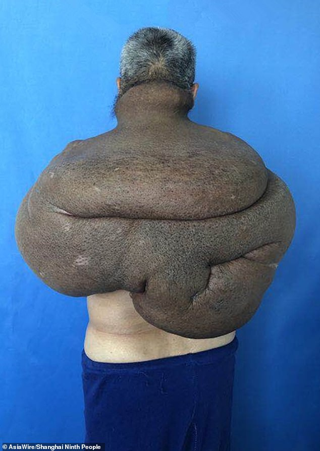 'Mr Tang' suffered from a 61lb (14.9kg) cancerous tumour (pictured) that engulfed his back