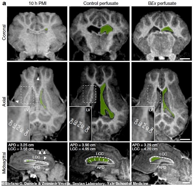 While the find is an exciting breakthrough, it is still a long way from proof that a person's consciousness can be recovered after they die, experts caution. This image shows magnetic resonance imaging scans of the brains