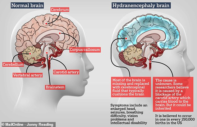 In patients with hydranencephaly, the main portion of the brain – known as the cerebrum (pictured left) – is missing and replaced with a sac of spinal fluid (pictured right, in blue)