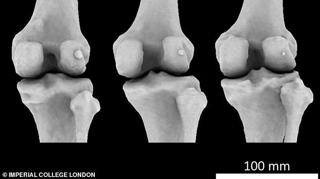 Drei Knie mit drei verschiedenen Fabella-Größen (kleiner Knochen rechts von jedem Bild). Forscher aus London sagen, dass es im letzten Jahrhundert ein Wiederaufleben erlebt hat - von 11,2 Prozent der Weltbevölkerung im Jahr 1918 auf 39 Prozent im Jahr 2018