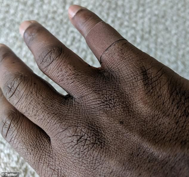 Emotional: A 45-year-old man shared the emotional experience that came with wearing a band-aid that matched his skin tone for the first time ever on Twitter