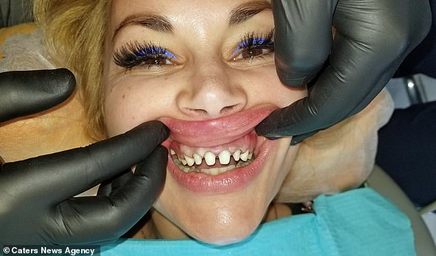Ms. Iglesias had been working for a month. This included having crowns, which were put after her real teeth were filed (photo)