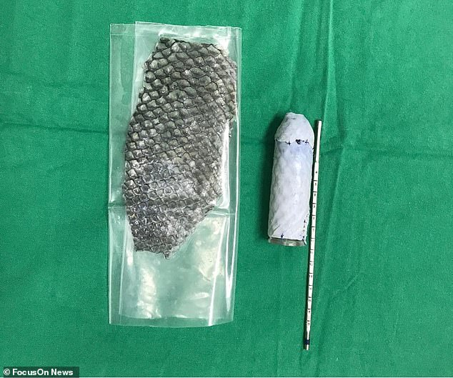 To construct a vagina, the skin is wrapped around a genital-shaped mould (pictured)