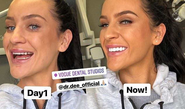 A whole new look! Long veneers were also used on Ines, lengthening her teeth and helping to change her look