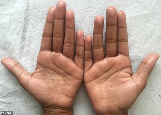 Sweat glistens from the hands of an 11-year-old girl who suffers from primary focal hyperhidrosis, which causes uncontrollable sweating in her palms and the soles of her feet