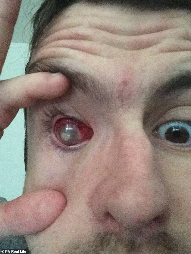 Mr Humphreys first noticed a scratch on his eye which opticians confirmed to be an ulcer. They took scratches from his eye to test for infection - which came back positive
