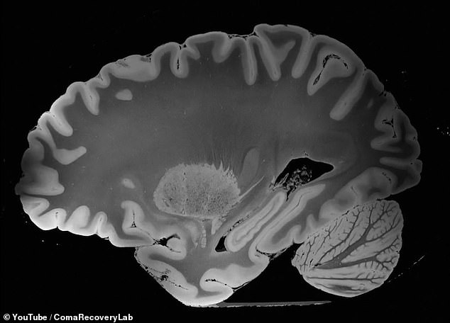 Parts of the brain can be seen in vivid detail,  including the cerebellum (pictured bottom right) which controls voluntary movement in the body