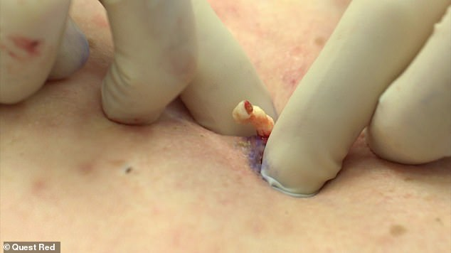 As the expert squeezes the spots, she jokes:'The contents of this cyst is this sebaceous material, it's this kind of cottage cheese consistency and this cottage cheese kind of smell!'