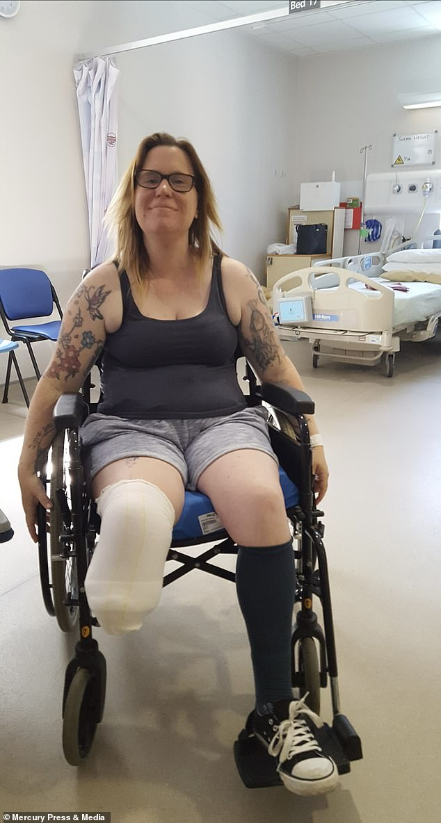 Heather Satchwell, who has diabetes, had to have her leg amputated after an ingrown toenail caused by running became gangrenous