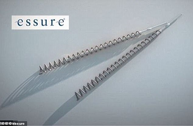 The Essure coil was removed from the UK market by its manufacturer Bayer Healthcare Pharmaceuticals in 2017