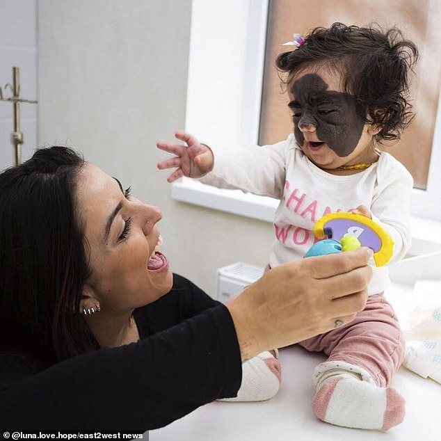 Doctors in US said Luna would need to endure up to 100 operations using laser surgery over five years, which left Mrs Fenner 'lost'
