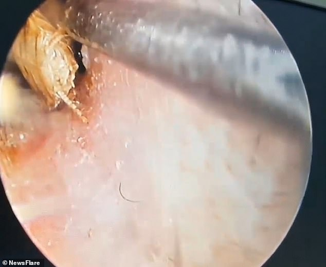 The woman said she woke up in the night with painful ear ache. Pictured, Dr Trinh removing the cockroach