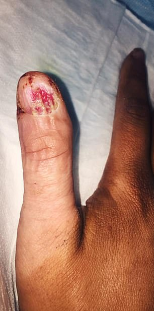 Her doctor eventually had to remove her whole thumbnail, exposing a nail bed oozing with yellow pus