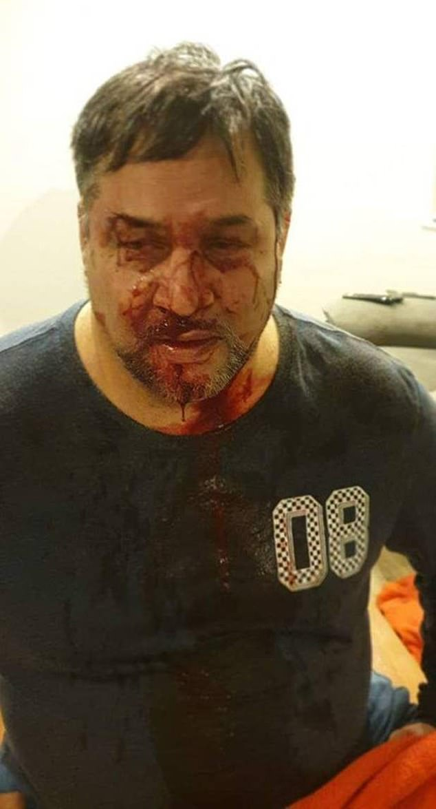 Four men then allegedly got out of the car and attacked the father-of-five, punching him in the body and the face (pictured)