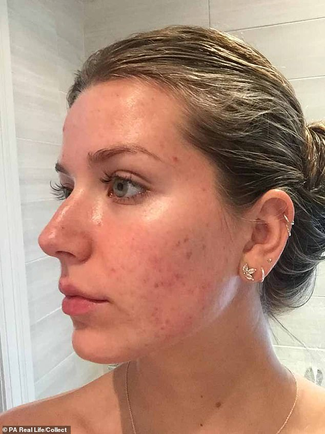 Charlotte Bouchard, 23, was too afraid to leave the house without makeup on due to her acne