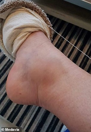 Pictured, Ms Clemence's ankle following the attack