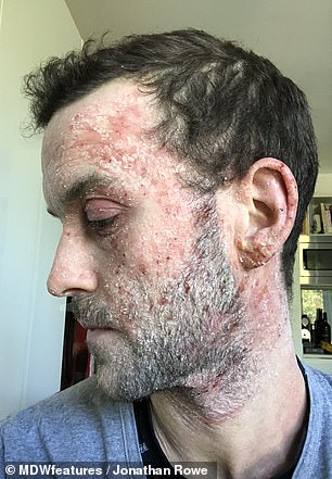 TSW is a condition which reportedly makes eczema temporarily worse when people stop using medicated creams