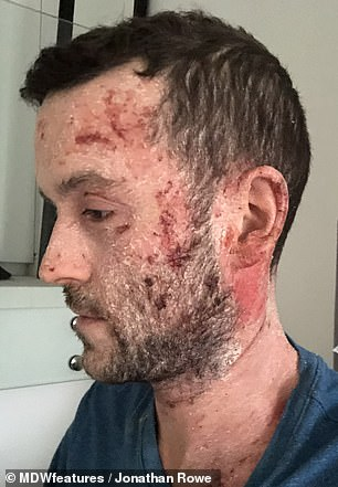 Mr Rowe believes he suffered from topical steroid withdrawal (TSW)
