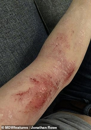 The skin on his arm is less red and inflamed now since he stopped using the steroids. It is pictured while healing