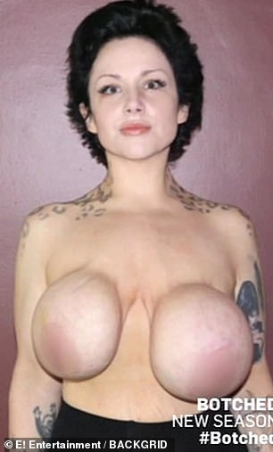 Problem: Gia said the more weight she lost, the more uneven and droopy her breasts became