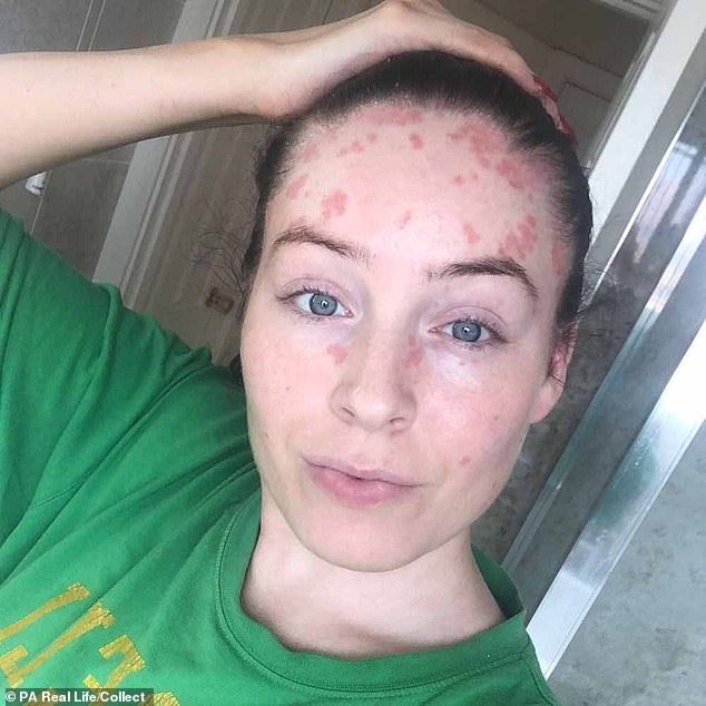 Ms Lunn, from Nottingham, first noticed a small scab on the back of her head aged 22, but shrugged it off, believing she must have banged it on something. However more patches sprang up across her face