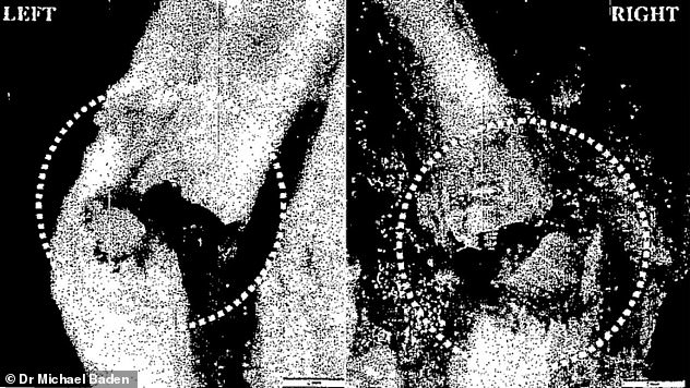 Injuries: A microscopic view of two fractures (circled) on the left and right of Epstein's thyroid
