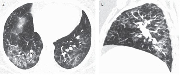 A CT scan revealed the disease had caused damaged lung tissue to engulf other cells and form 'giant' cells that can be seen clearly under a microscope (shown as large white lumps)