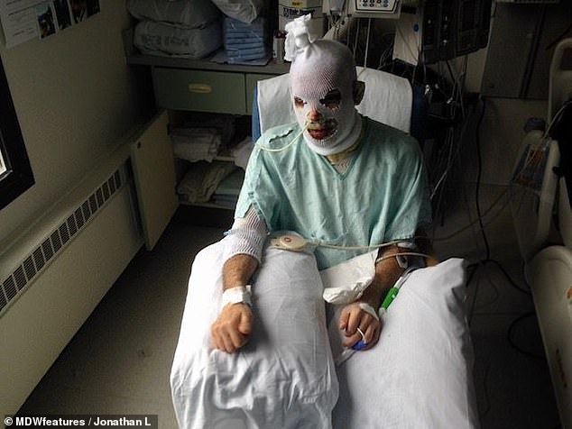 The skin on his face started rotting and flaking off due to Stevens-Johnson syndrome, leaving his flesh exposed and prone to infection (pictured wrapped in bandages to protect him from infection)