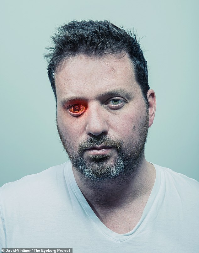 On having his blind right eye removed in 2008, the Canadian decided to replace it with a prosthetic containing a video camera ¿ one that could record interview subjects