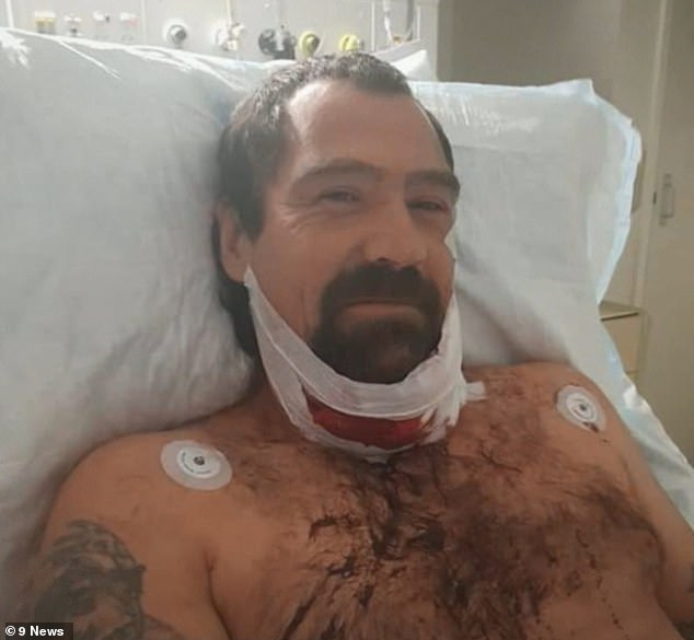 Mr Burt (pictured) was rushed to hospital where he had 60 stitches on his neck and face