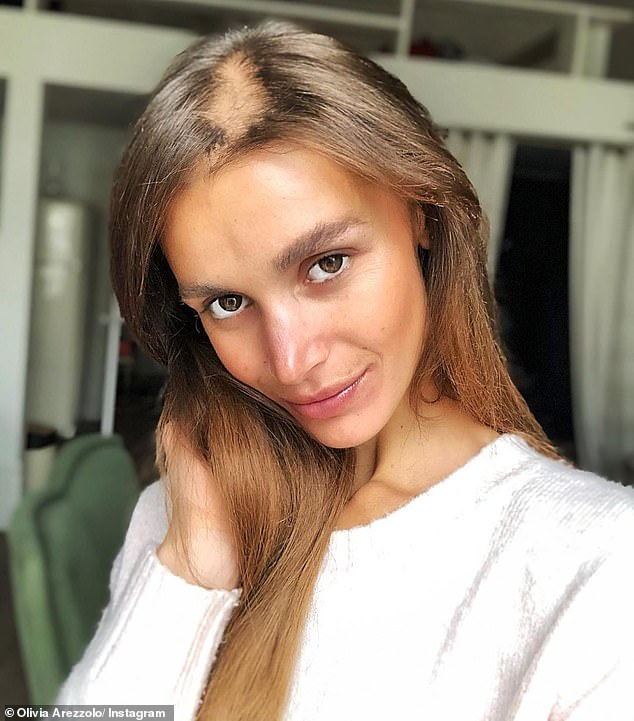 Olivia Arezzolo (pictured), from Sydney, said she struggled with both bulimia and anorexia as a teenager - and since then, she has always struggled with thin hair