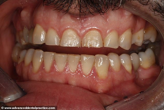 While it's a good thing for the environment, it is important to note that any kind of straw is good for protecting your front teeth from coming into direct contact with sugary, acidic drinks. Pictured: a 44-year-old man with damage caused by drinking fruit juice