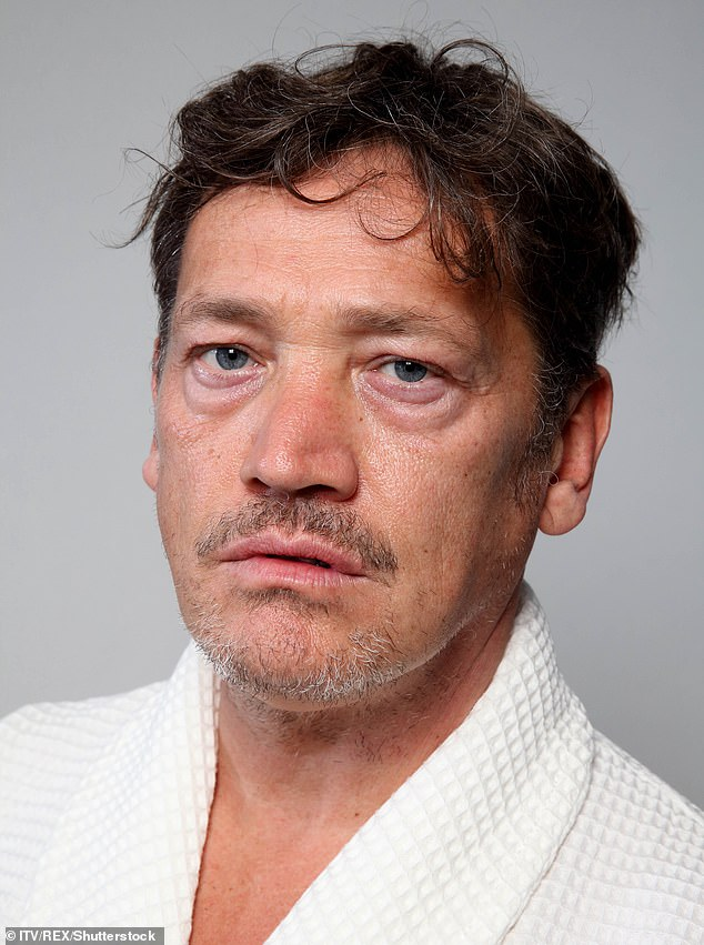 Agony: Actor Sid Owen has found himself stranded in Thailand with a shattered jaw after a golf ball thwacked him in the face and knocked out six of his teeth [pictured in 2018]