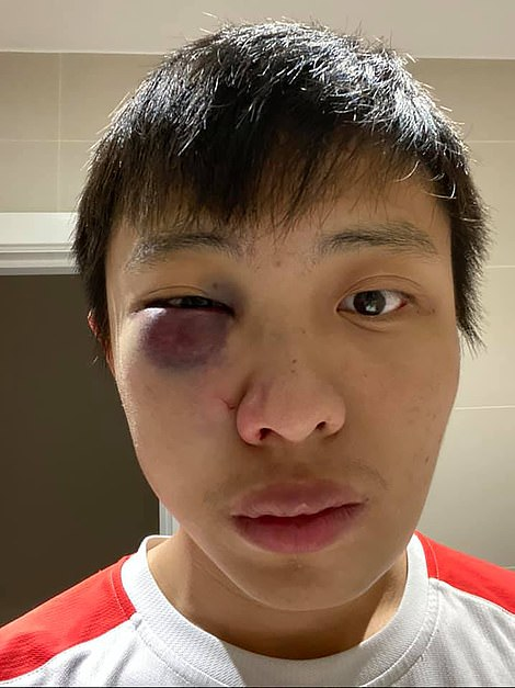 Jonathan Mok was left with a swollen eye and a bloodied nose after he was attacked on Oxford Street