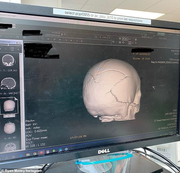 Looking up: Ryan reported that swelling and bruising on Brielle's brain had decreased, a promising sign
