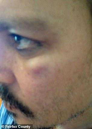 Bruised depp
